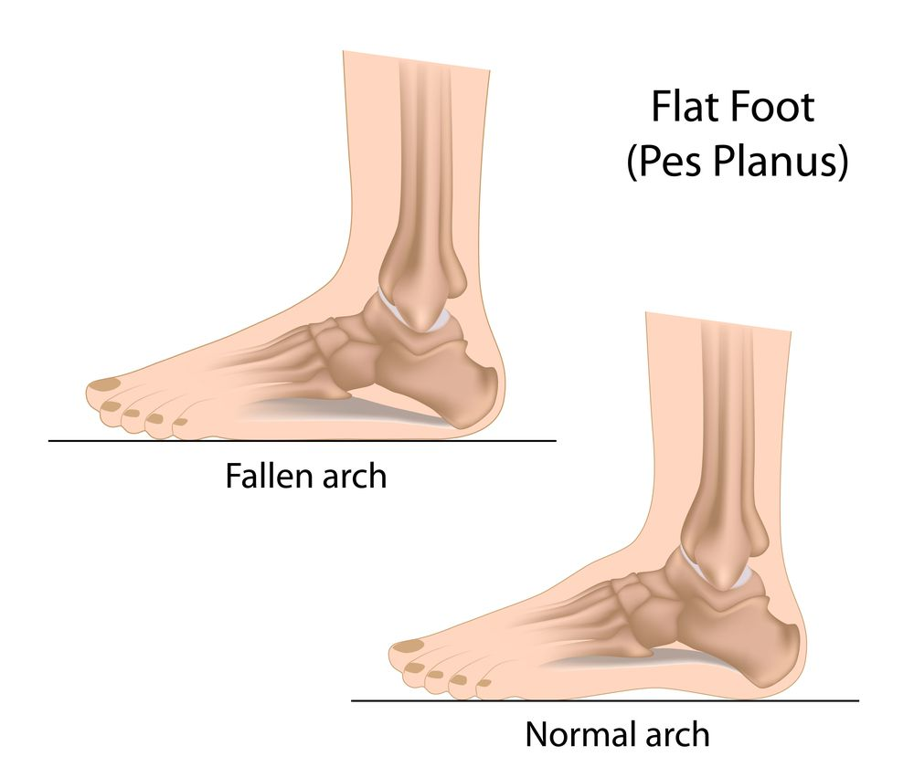 Childs flat feet next step foot ankle clinic diagram of flat feet pooptronica