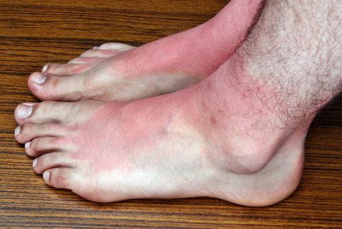Skin Cancers of the Feet: The Role of Today's Podiatrist ...
