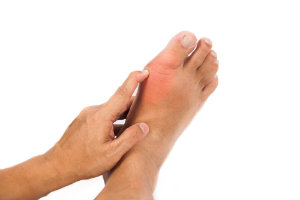 Swollen Feet Tips