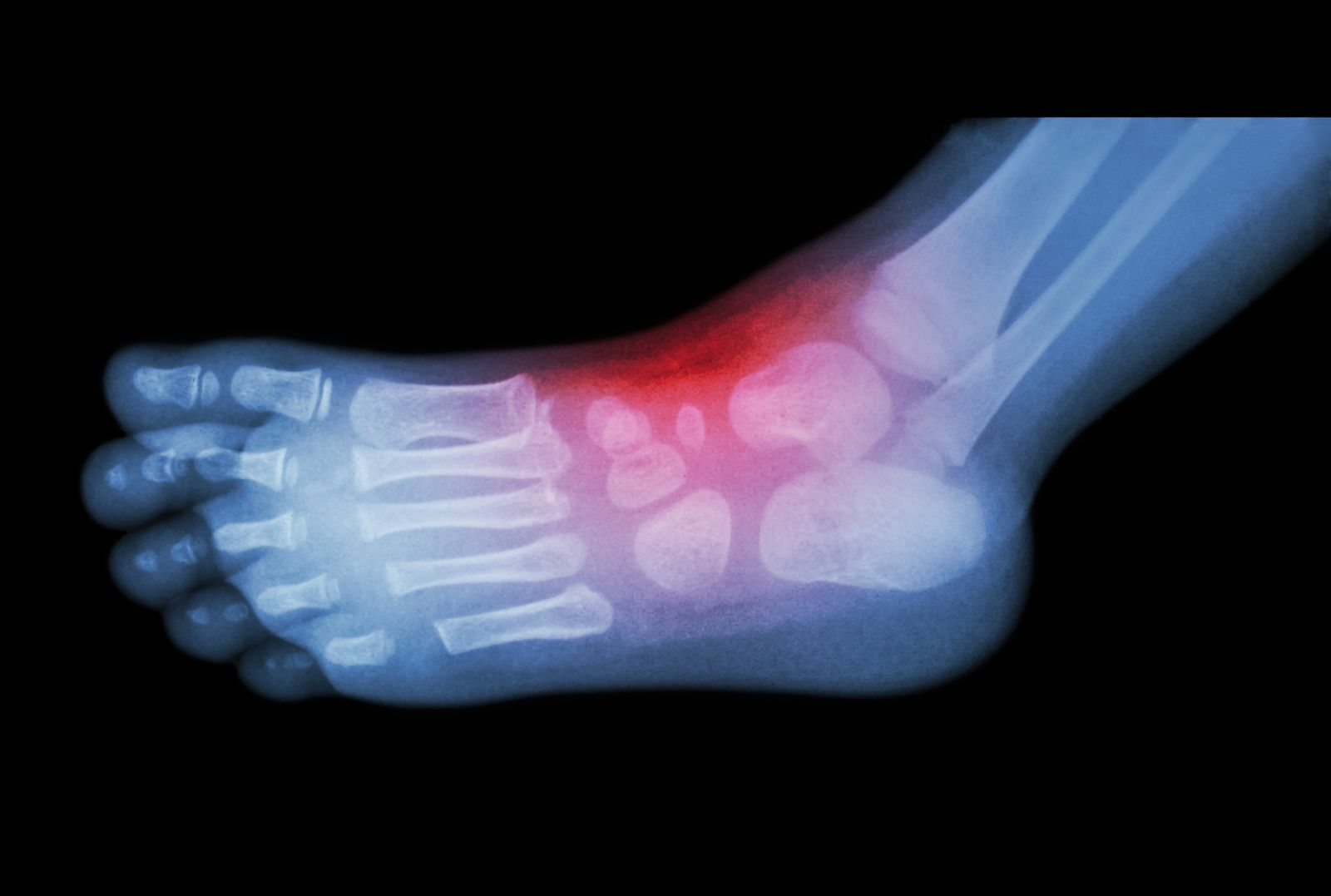 X-ray of a broken metatarsal bone