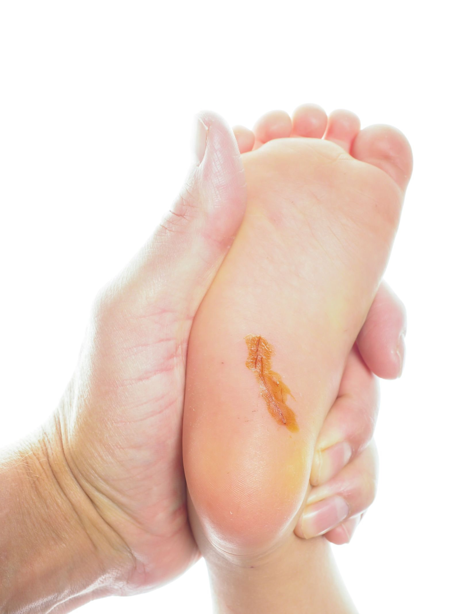 Diabetic Wound Care Medford Oregon | Southern Oregon Foot & Ankle, LLC
