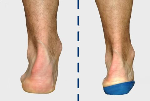 How to Adjust to Your New Orthotics | Sol Foot & Ankle Centers Ankle Pronation Surgery