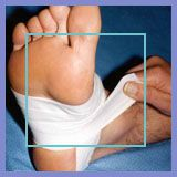 foot taping for heel pain