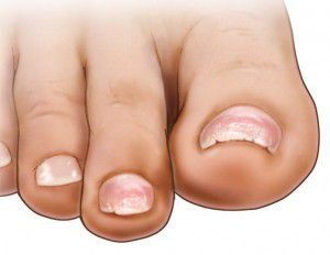 Chipped Brittle Peeling Toenails