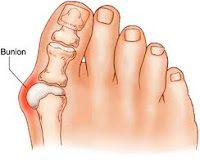 Piscataway bunion surgery