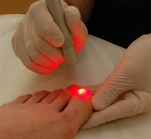 laser for toenail fungus