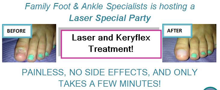 laser for toenail fungus special