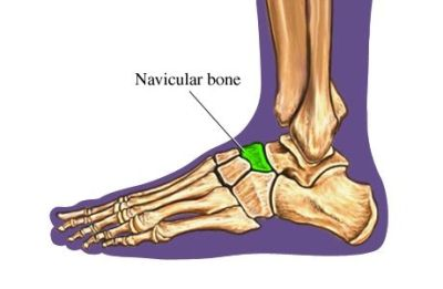 navicular stress fractures