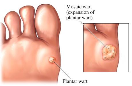 Pictures of warts on toes