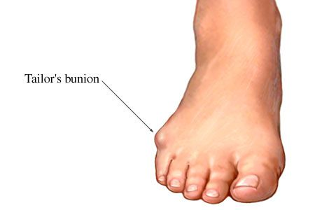 Dr. Wishnie, podiatrist in Hillsborough and Piscataway, NJ explains a Tailor's Bunion