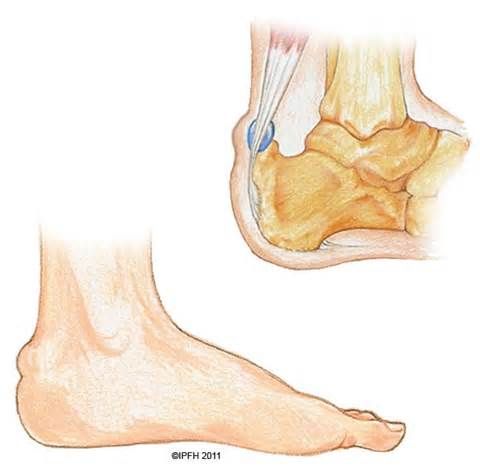 What is Haglund's Deformity? | Family Foot & Ankle Specialists