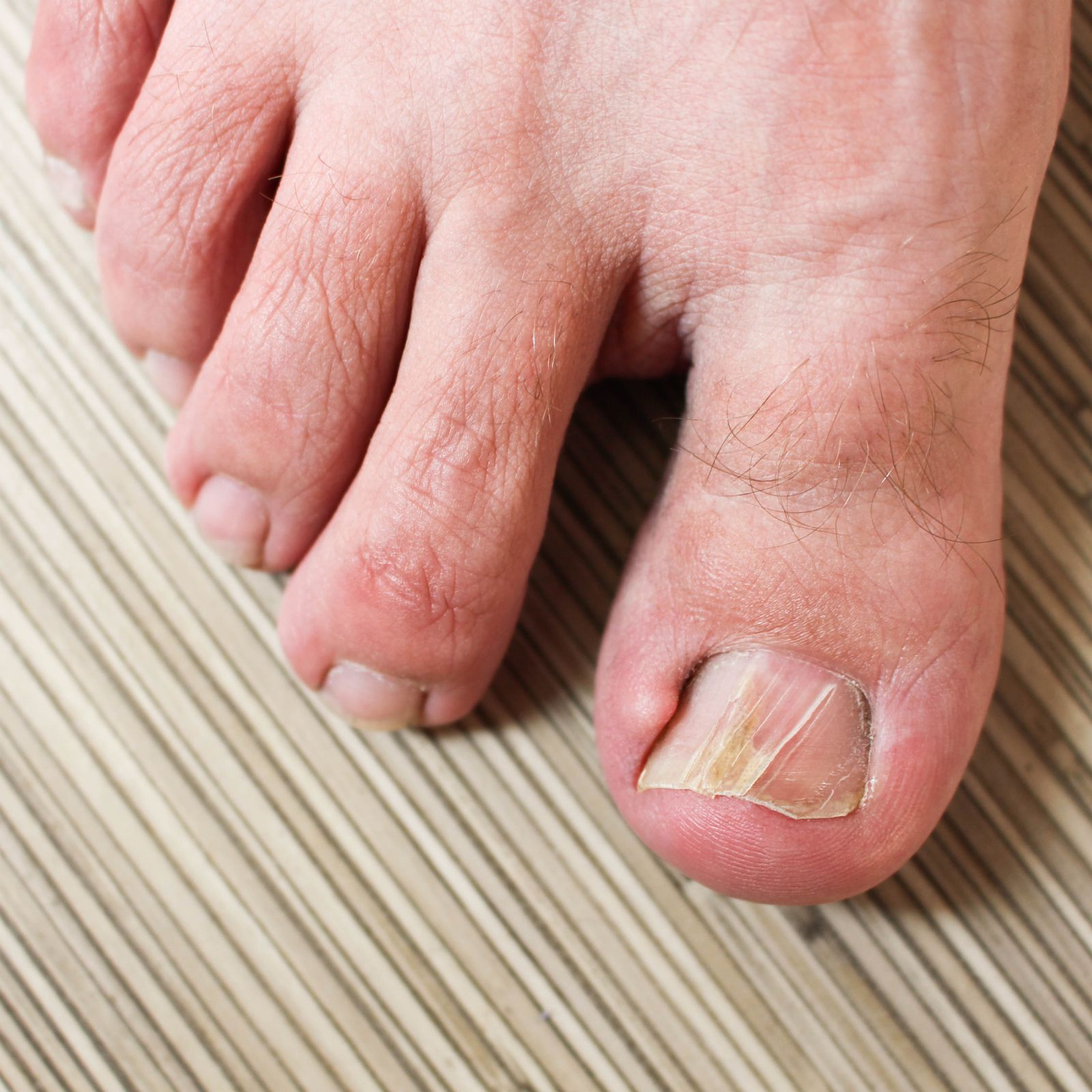 Ingrown Toenails | Sunshein Podiatry Associates