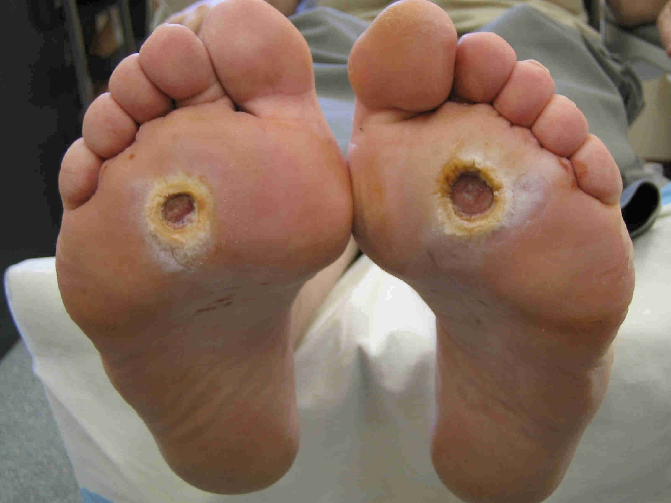 Diabetic foot ulcer treated by Houston podiatrist and wound specialist