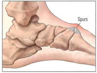 Houston podiatrist treats bone spurs to eliminate pain