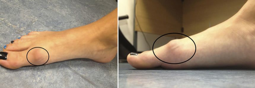 Bunion or arthritis? Your podiatrist can tell you!