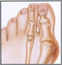 Bunion treated by Houston podiatrist and foot surgeon