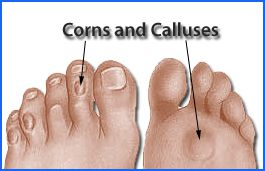 Houston treatment for corns and callus