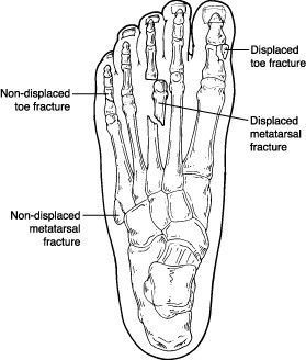 Common foot fractures seen by Houston podiatrist