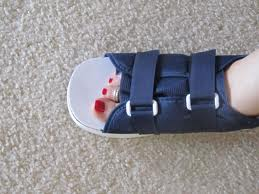 surgical shoe and boot for broken toe