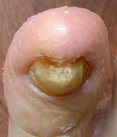 toenail fungus is contagious and should be treated