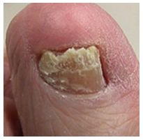 Toenail fungus treated by Houston Podiatrist Dr. Andrew Schneider