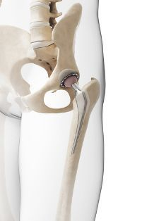 A 3D Rendered Image of a Hip Implant