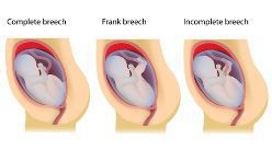 The Three Different Breech Delivery Positions