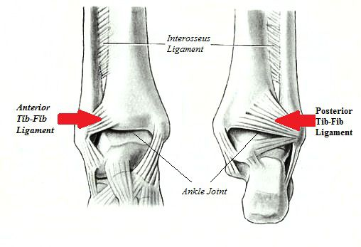 Ligaments commonly injured with a high ankle sprain