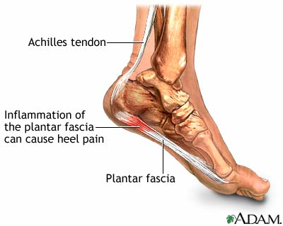 Plantar Fasciitis, an inflammation of the plantar fascia