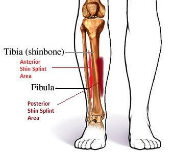 a discussion of the causes for medial tibial stress syndrome You could possibly be at risk of developing medial tibial stress syndrome  this  is a very common injury and is caused by the overuse of muscles in your leg.