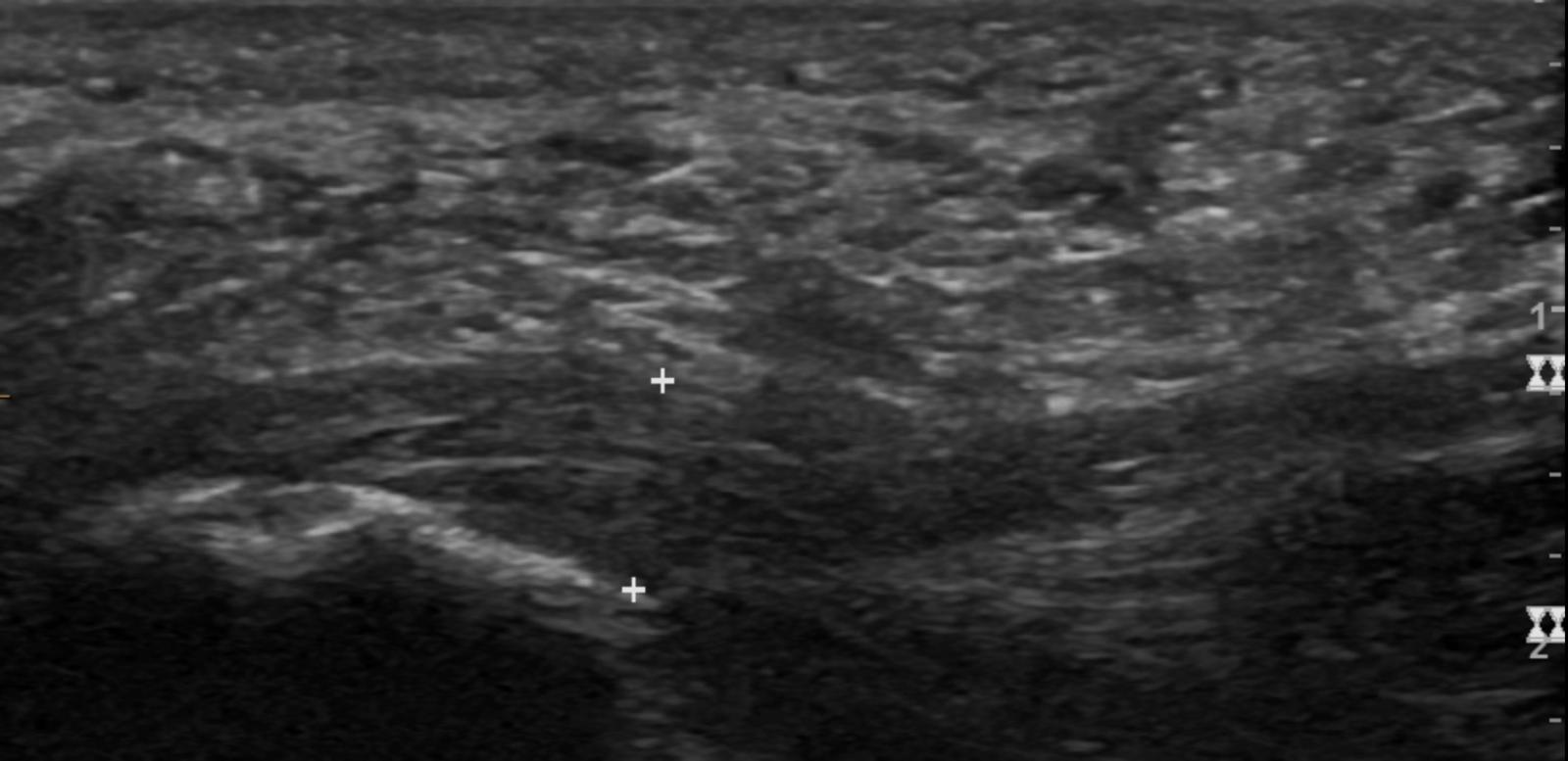 Thickened plantar fascia