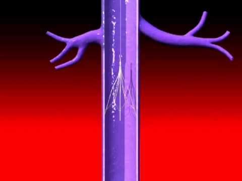 IVC blood clot filter