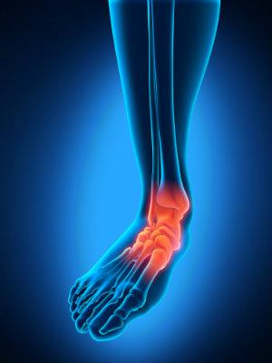 ankle sprains cincinnati oh family foot ankle