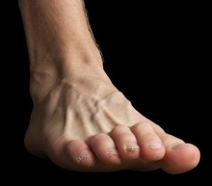 Bent Toes