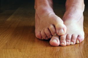 Treating a Toe Deformity