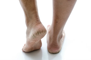 Feet with dry skin