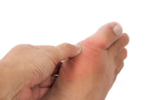 Painful Gout Flare Up
