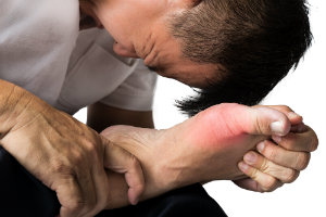 Painful Symptoms of Charcot Foot